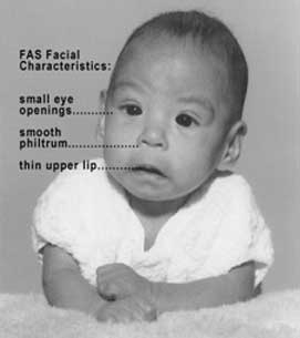 Facial Characteristics of Fetal Alcohol Syndrome with labels: Small eye openings, smooth philtrum, thin upper lip