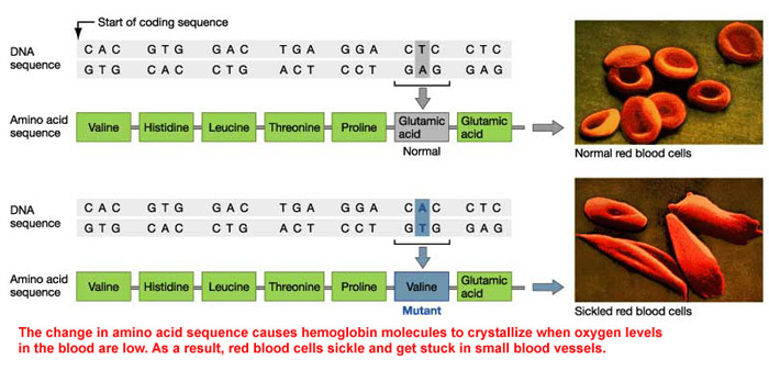 Sickle Cell Coding and Blood Cells