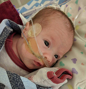 Premature infant with feeding tube