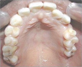 Example of taurodontism, which is enlargement of the body and shortening of the roots of the tooth