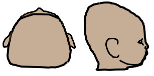 drawing of Brachycephaly viewed from top and side of head
