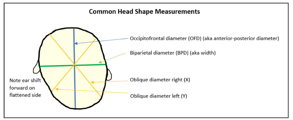 Drawing showing Common Head Shape Measurements with labels